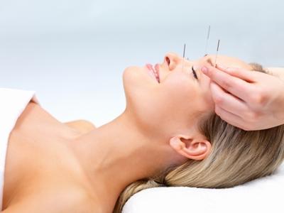 cosmeticacupuncture